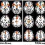 Cómo engañar a un detector de mentiras basado en fMRI 7