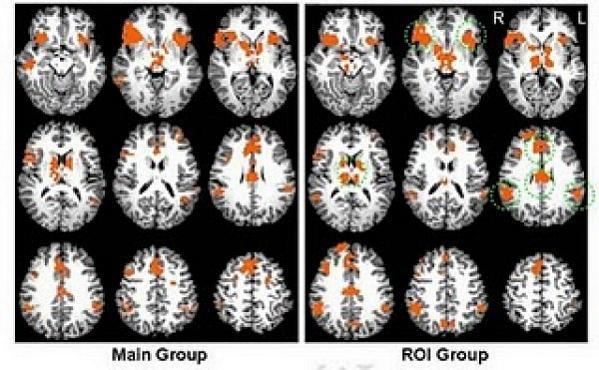 45e8f4939bc3bd36e4b87ab1e324d227 - Cómo engañar a un detector de mentiras basado en fMRI