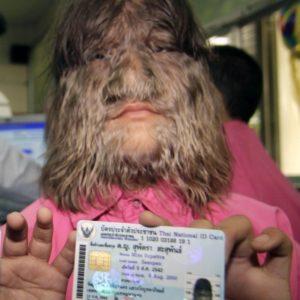 Supattra Sasupan la niña con más pelo del mundo 24