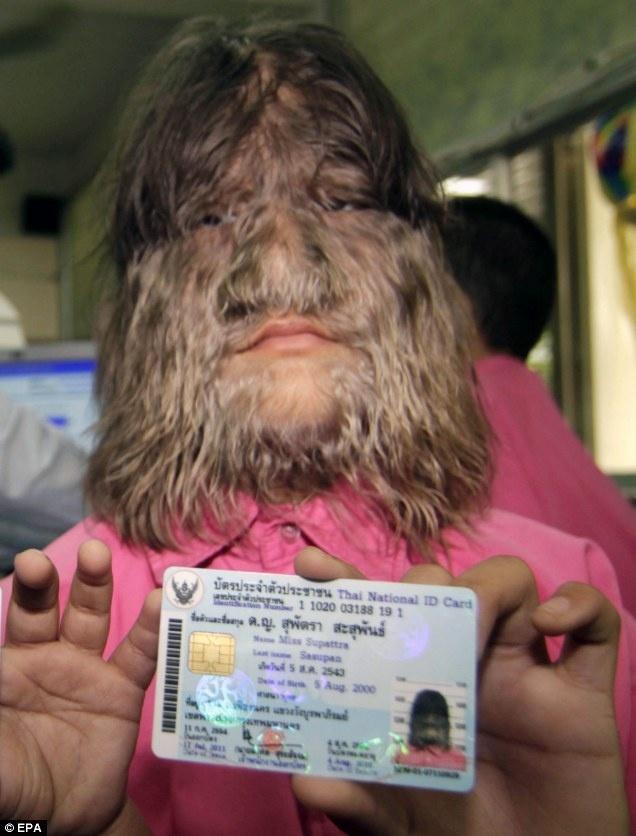 dbe05350458c15fa6c802fb686391131 - Supattra Sasupan la niña con más pelo del mundo
