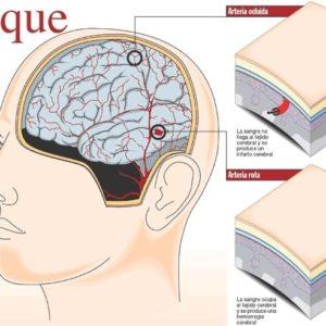 El optimismo está asociado con un menor riesgo de derrame cerebral 22