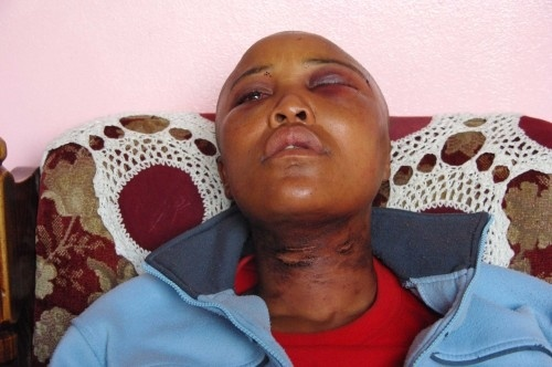 Violación correctiva de lesbianas en Sudáfrica en incremento 8