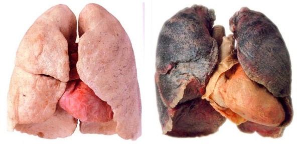 8b73a42f665d6a2641fcaae19abdf883 - Cuba halla vacuna contra el cáncer de pulmón