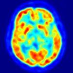 Descubren una variación genética que protege contra el Parkinson 7