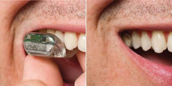 a00fc2411062cccde9c7962ab961e135 - Es posible escuchar através de los dientes