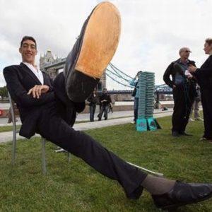 Un nuevo tratamiento detiene el crecimiento del hombre más alto del mundo 48