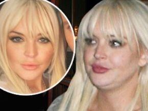 Lindsay Lohan se arruinó la cara con rellenos de grasa 9