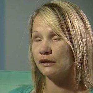 Su pareja le arrancó los ojos durante una agresión 23