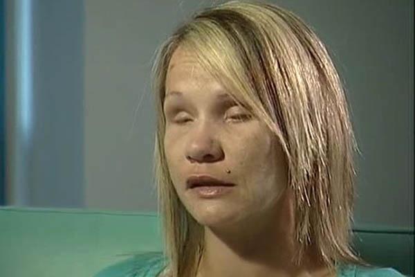 527ede70799b3466fec1c701da379a2f - Su pareja le arrancó los ojos durante una agresión
