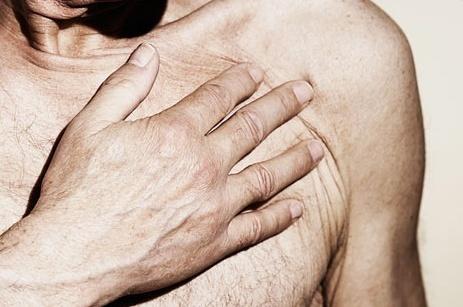 9bbefb8771b3d95dfda1e3f1837470bd - Luz intensa, nuevo tratamiento preventivo contra los infartos