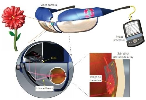 2cdbed97a3252cdb5d2744be0d0f852f - Crean un ojo biónico para las personas con ceguera que funciona con luz natural