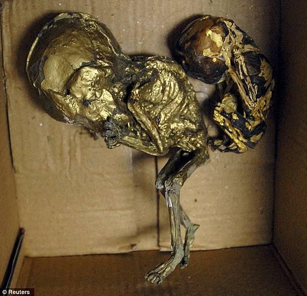 ¡Macabro! hallan fetos envueltos en hojas de oro dentro de una maleta (Advertimos Fotos Impactantes) 4