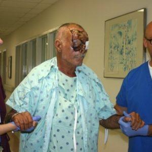 Víctima de ataque caníbal en Miami se recupera pero quedará ciego 4