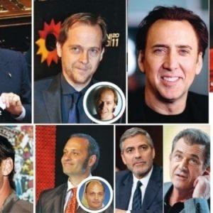 Descubre que famosos lleva implante de pelo 17