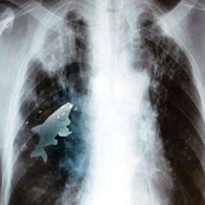 Un pez vivía en el pulmón izquierdo de un niño 24