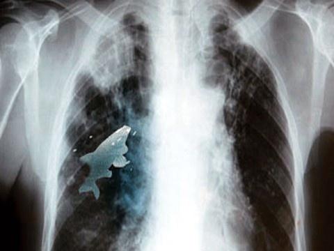 f04a53d77afbc87d7495823d610ad112 - Un pez vivía en el pulmón izquierdo de un niño