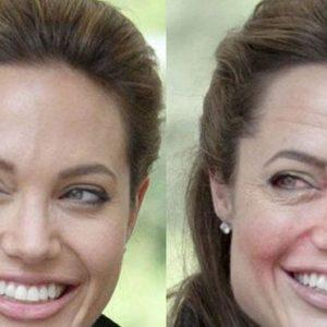 Cómo luce tu cara después de 10 años de consumo excesivo de alcohol 10