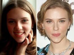 ¿La belleza de Scarlett Johansson es 100% natural? 20