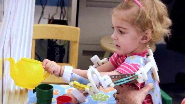 dafbc4781b6d3971c7bc8673852c7cf3 - Construyen un exoesqueleto con impresión 3D y la pequeña Emma Lavelle consigue usar sus brazos