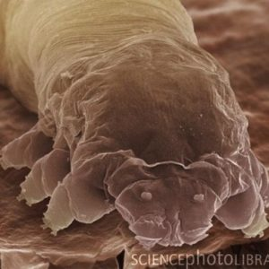 La rosácea podría estar causada por una bacteria presente en la cara 20