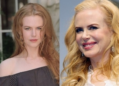 Nicole Kidman admite que el botox le arruinó la cara 16
