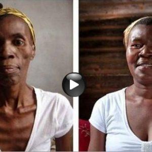 Un dramático video muestra los efectos que causa el sida 32
