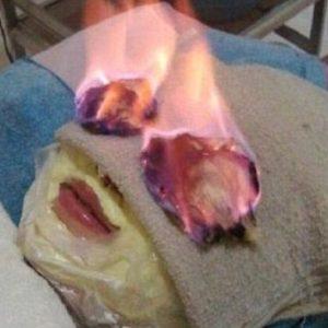 #Video Lo último en tratamientos de belleza: prenderle fuego a la cara 11