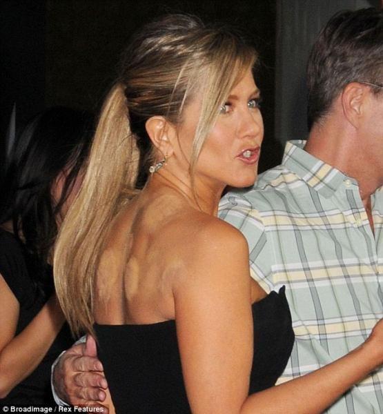noticiascuriosas Extrañas marcas en la espalda de Jennifer