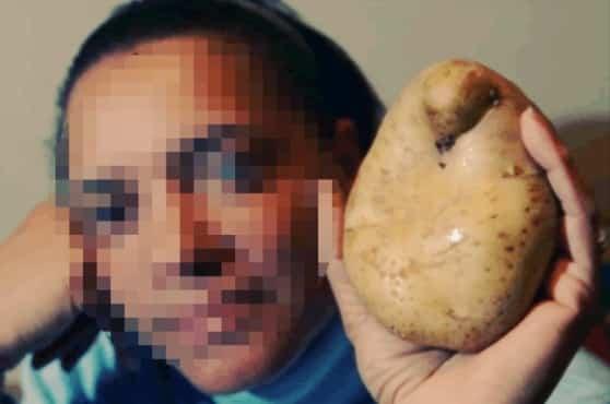b87d00e889eeac9b145d522c4cf70673 - Usaba una patata en su vagina como anticonceptivo y acabó germinándola