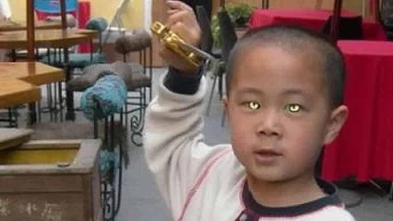 6a4c9a5bdf802d0d903da5e05d7246b1 - Nong Youhui, el Cat-Boy (Niño Gato) que puede ver en la oscuridad