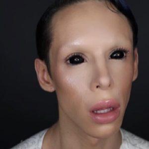 """Vinny Ohh el joven que se sometio a cien cirugías para convertirse en un """"alienígena asexual"""" 23"""